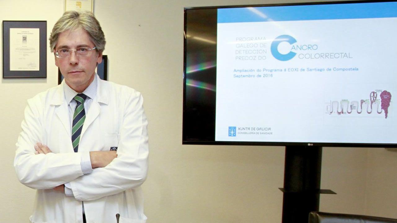 Enrique Domínguez, jefe del servicio de digestivo del CHUS: «El de colon es tan eficiente que el segundo año ya ves resultados»